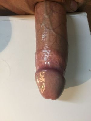 Pic - My cock